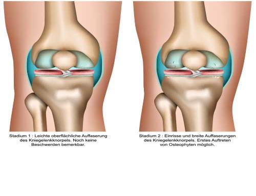 Arthrose - Knie Stadien